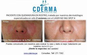 CDERMA火傷痕の治療